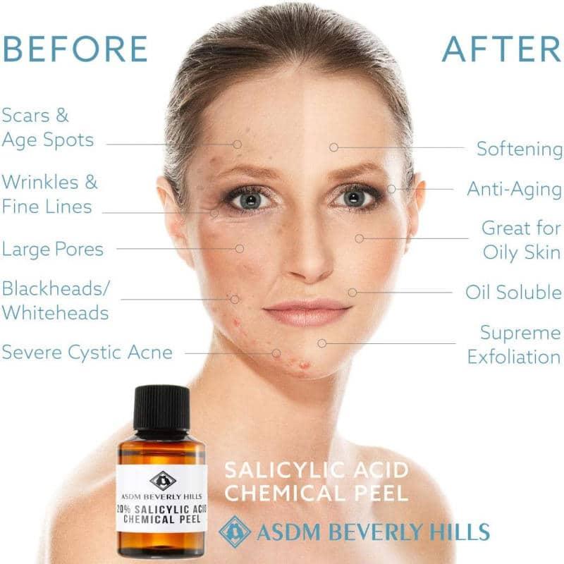 ASDM Beverly Hills Salicylic Acid Peel Ad
