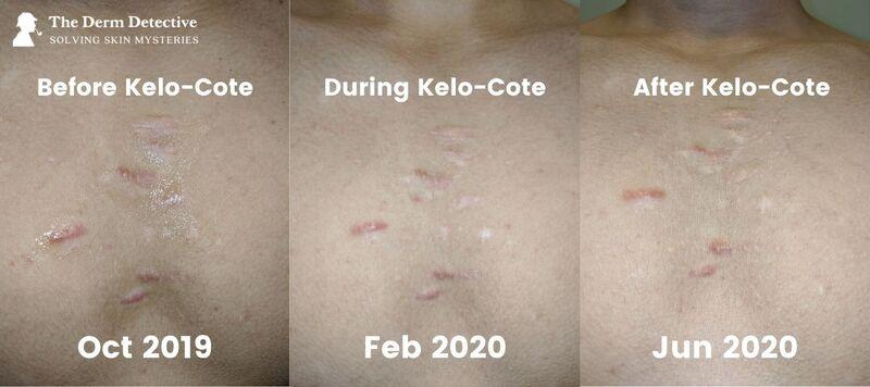Chest Keloids Kelo-Cote