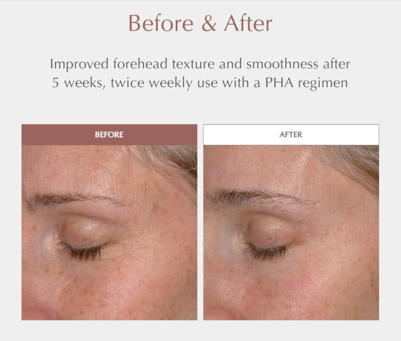 Exuviance Performance Peel AP25 - Before and After