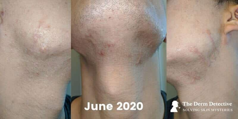 Facial Hypertrophic Scars on June 14, 2020