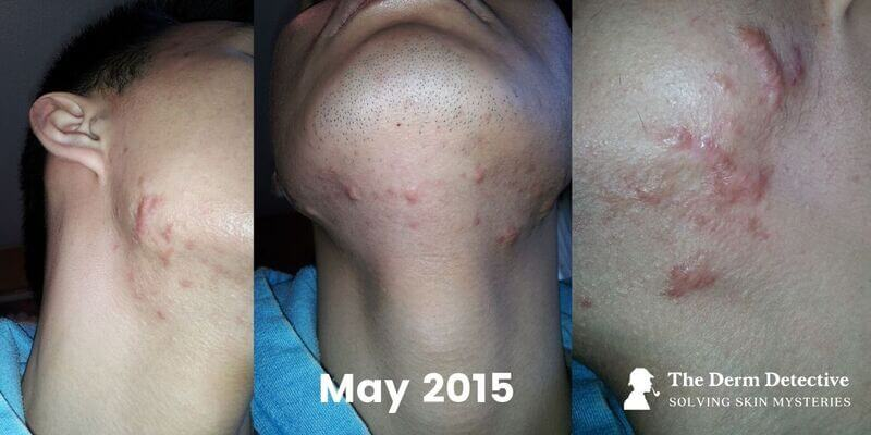 Facial Hypertrophic Scars on May 23, 2015