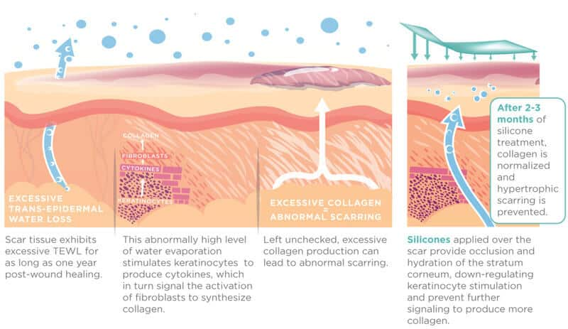 How Silicone Works