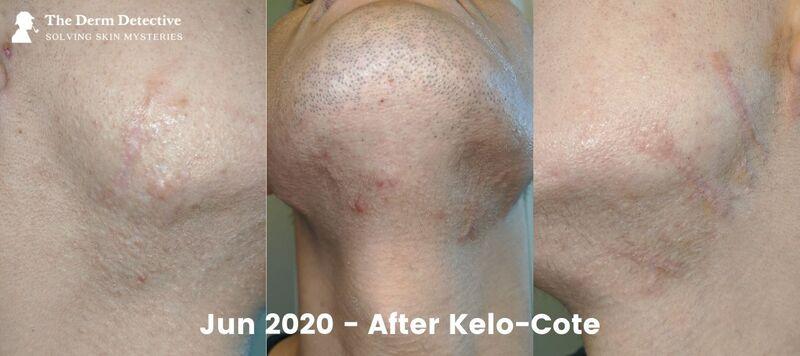 June 2020 After Kelo-Cote