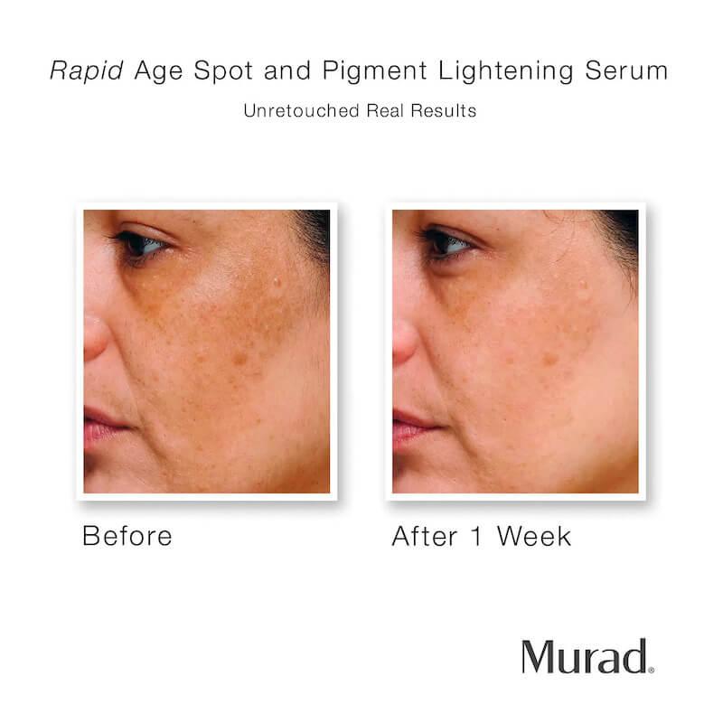 Murad Rapid Age Spot Pigment Lightening Serum Ad 2