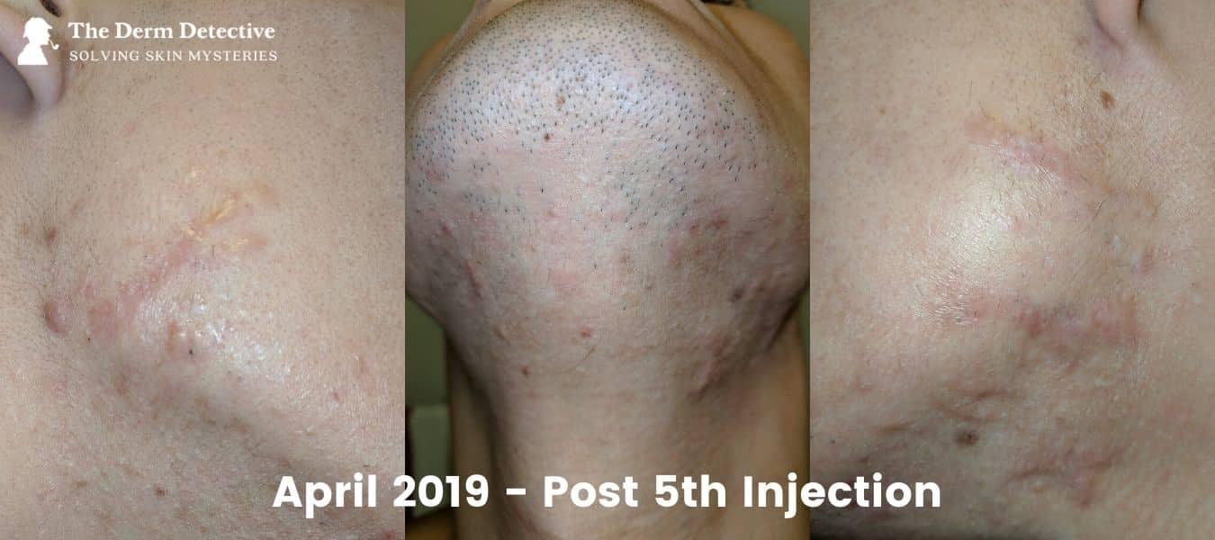 Post-5th-Corticosteroid-Apr-1-2019