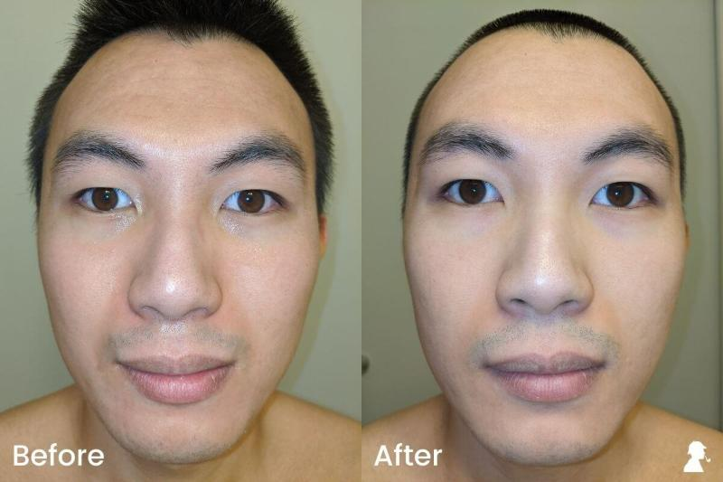Revitaboost-Before-After-Photos-Full-Face