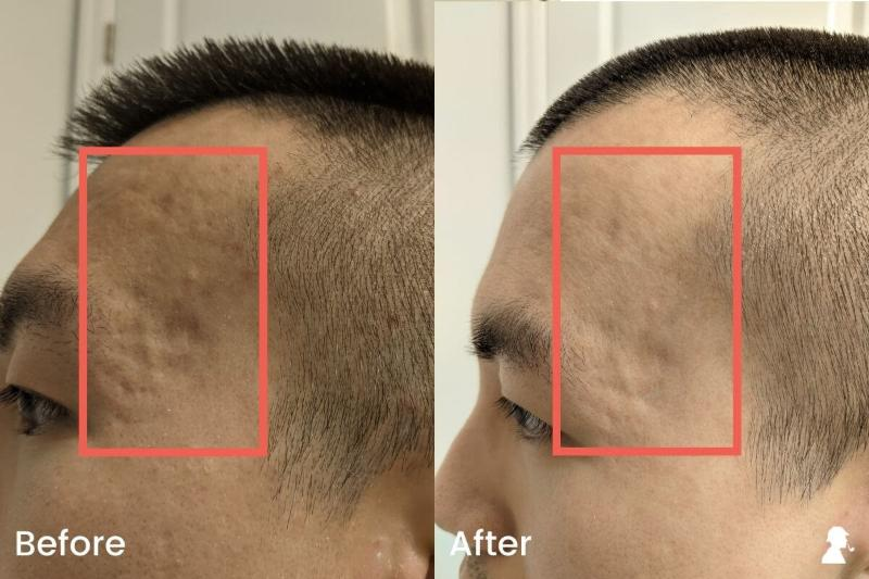 Revitaboost-Before-After-Photos-Left-Temples-Angled-Lighting
