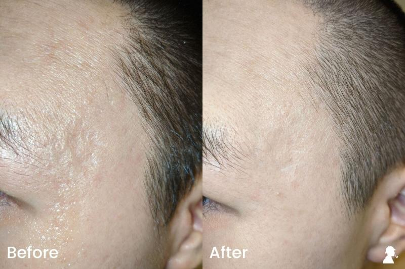 Revitaboost-Before-After-Photos-Left-Temples-With-Flash