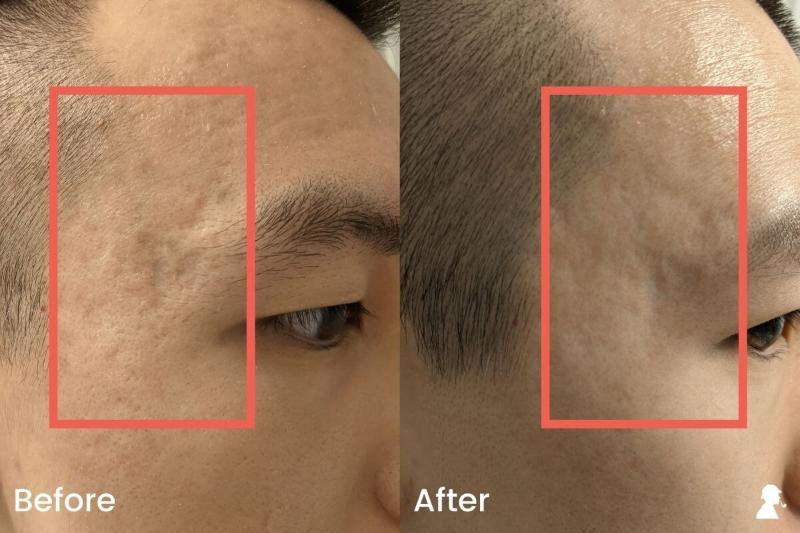 Revitaboost-Before-After-Photos-Right-Temples-Angled-Lighting