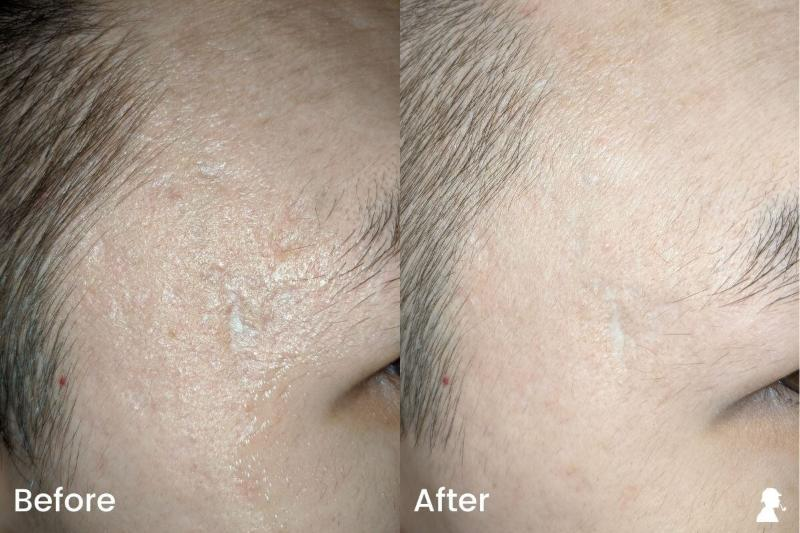 Revitaboost-Before-After-Photos-Right-Temples-With-Flash