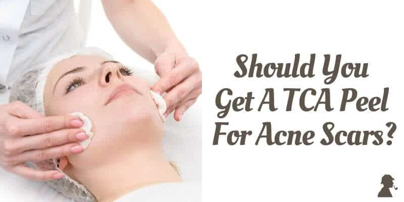 Should-You-Get-A-TCA-Peel-For-Acne-Scars