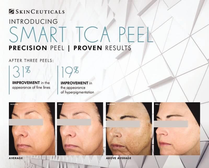 SkinCeuticals Smart TCA Peel Ad