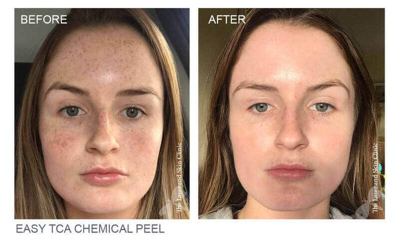 TCA-Before-and-After-by-Laser-and-Skin-Clinic-Ireland