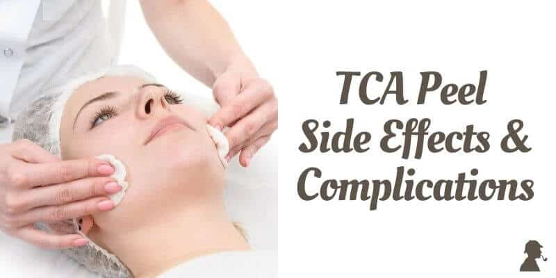 TCA-Peel-Side-Effects-and-Complications