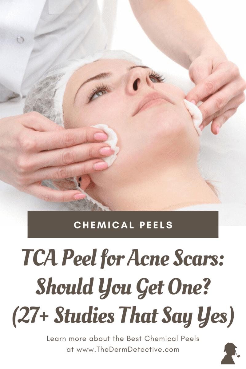 TCA-Peel-for-Acne-Scars-Pinterest