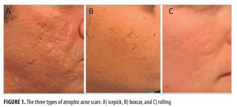 Types-of-Atrophic-Acne-Scars